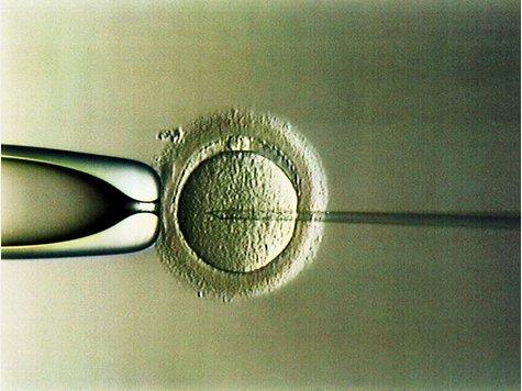 künstliche befruchtung kosten für single Düren